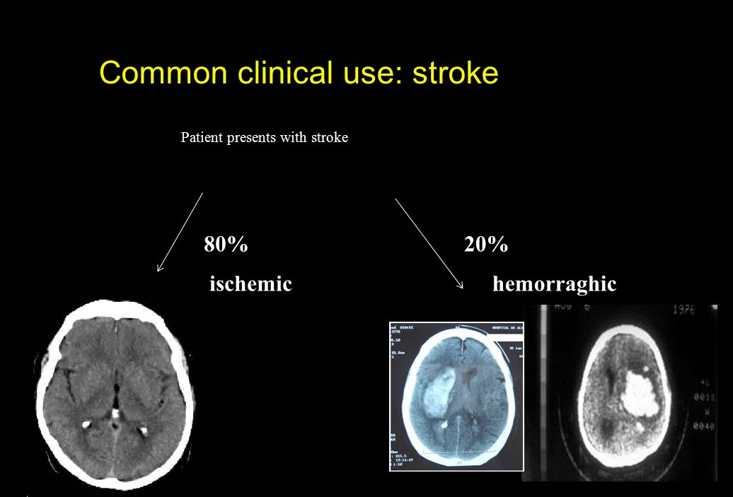 Common clinical use: stroke