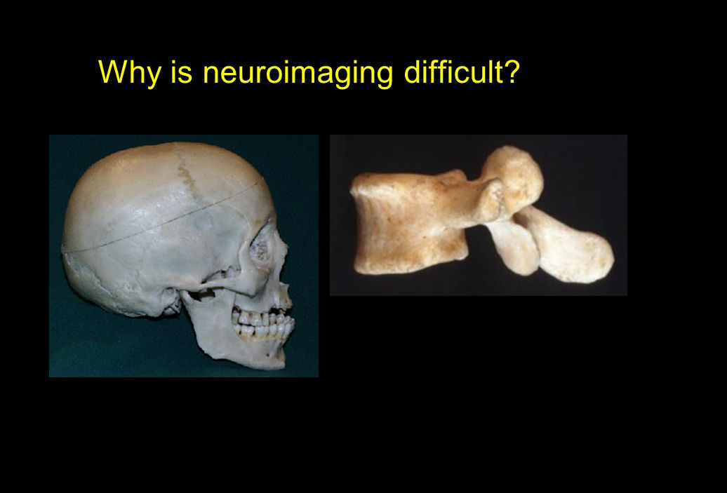 Why is neuroimaging difficult