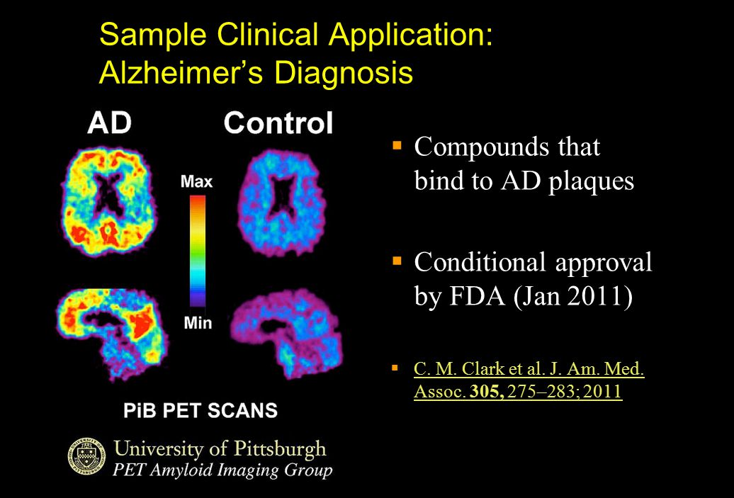 Sample Clinical Application: Alzheimer's Diagnosis