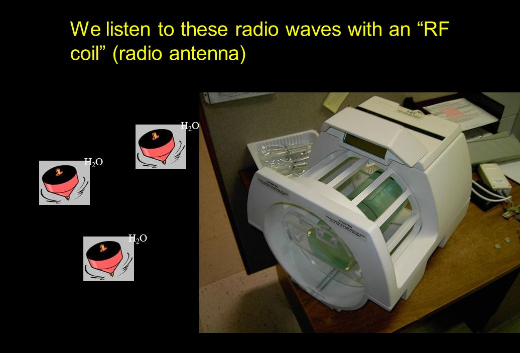 We listen to these radio waves with an RF coil (radio antenna)