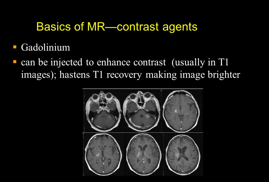 Basics of MR—contrast agents
