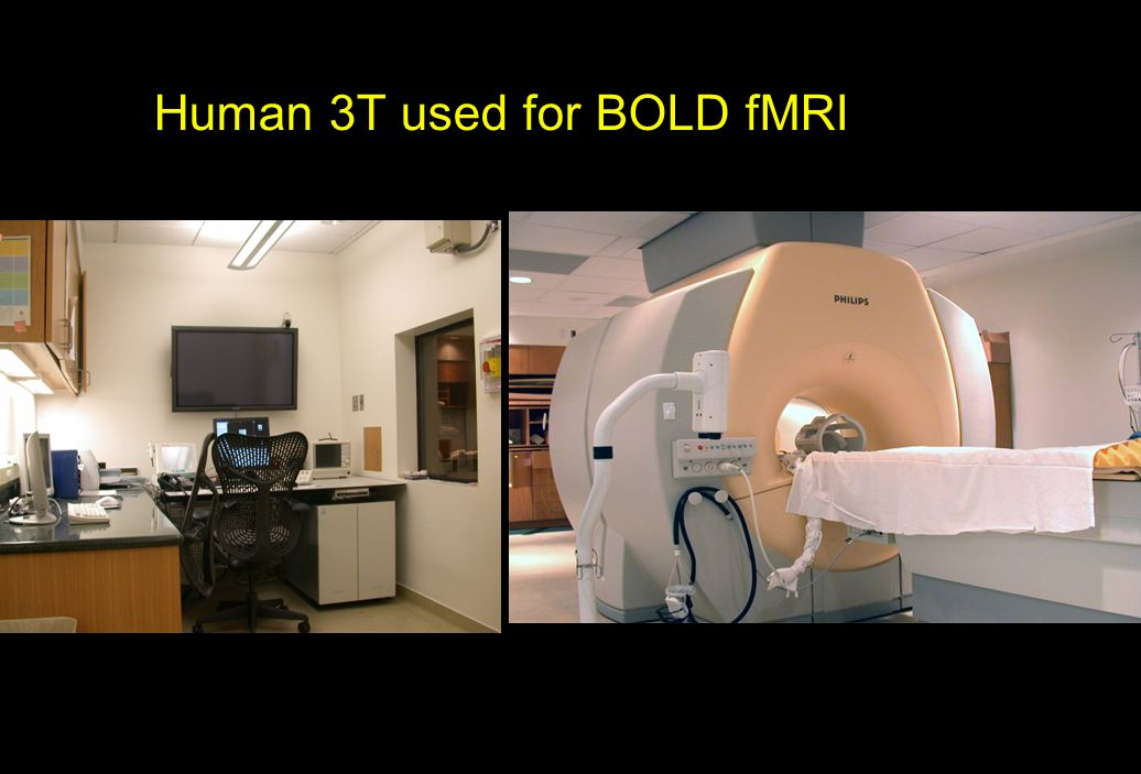 Human 3T used for BOLD fMRI