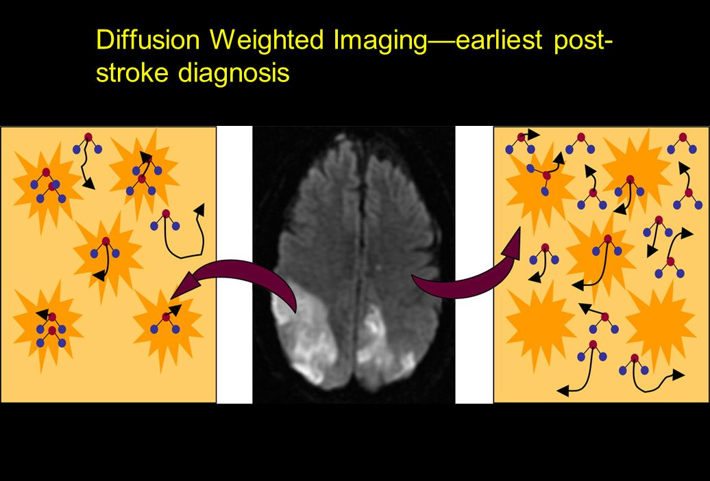 Diffusion Weighted Imaging—earliest post-stroke diagnosis