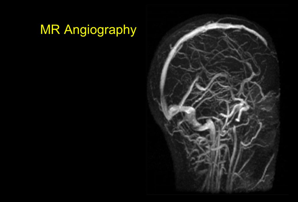 MR Angiography Show movie