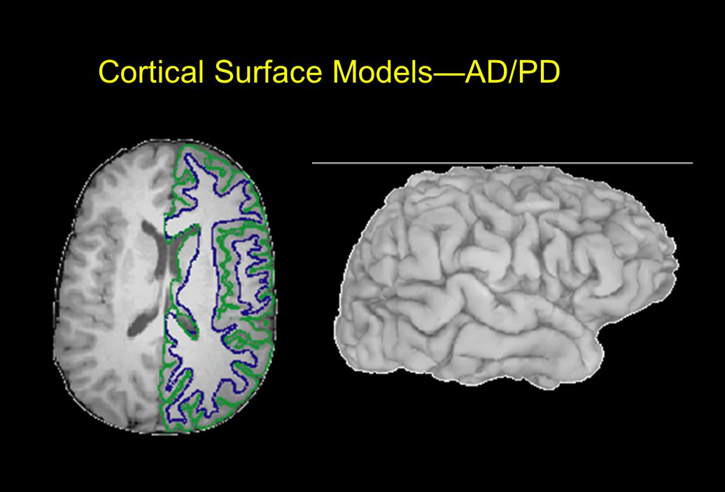 Cortical Surface Models—AD/PD