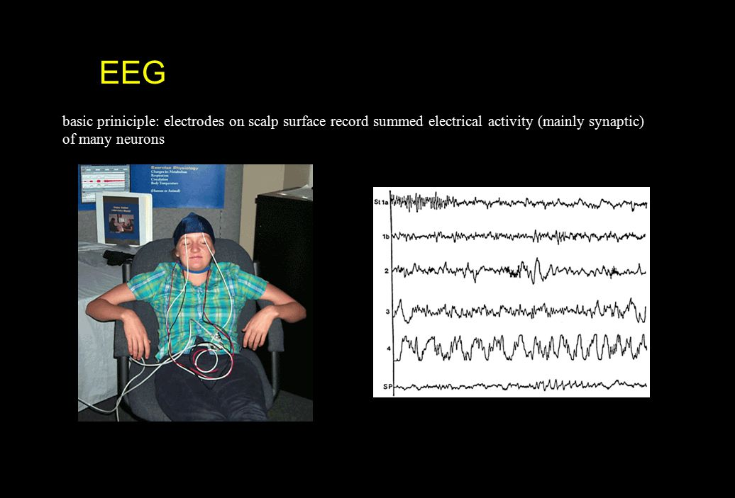 EEG basic priniciple: electrodes on scalp surface record summed electrical activity (mainly synaptic)
