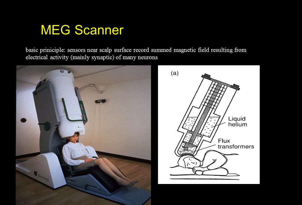 MEG Scanner basic priniciple: sensors near scalp surface record summed magnetic field resulting from.