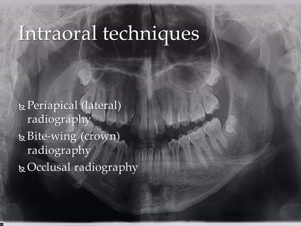 Intraoral techniques Periapical (lateral) radiography