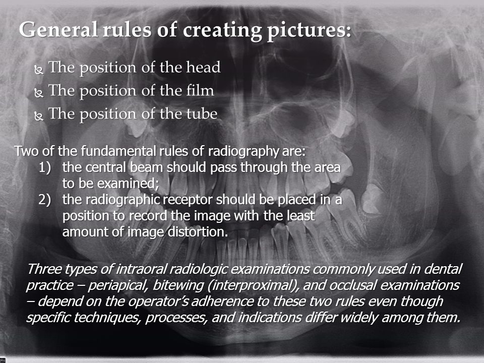 General rules of creating pictures: