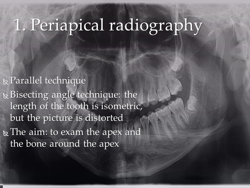 1. Periapical radiography