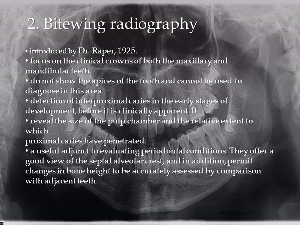 2. Bitewing radiography introduced by Dr. Raper, 1925. focus on the clinical crowns of both the maxillary and.