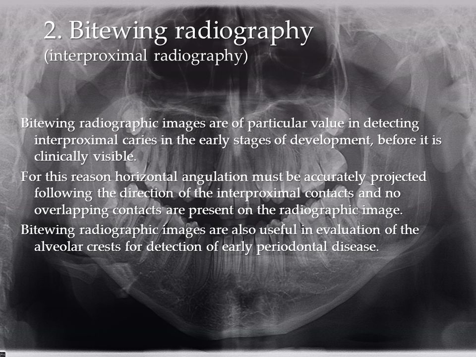 2. Bitewing radiography (interproximal radiography)