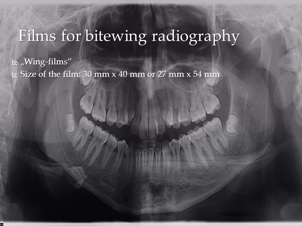 Films for bitewing radiography