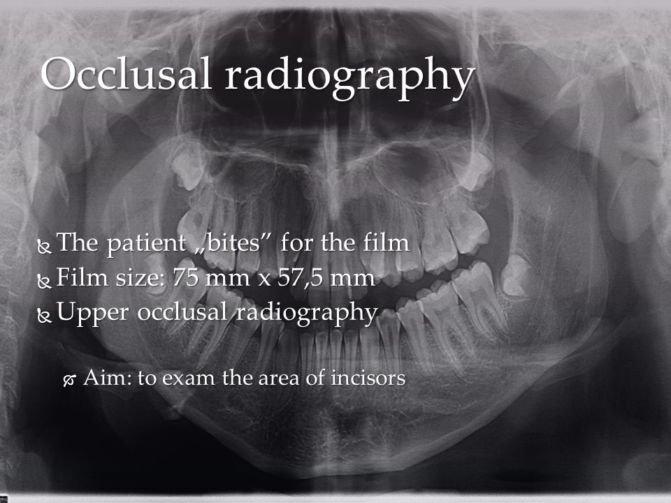 "Occlusal radiography The patient ""bites for the film"