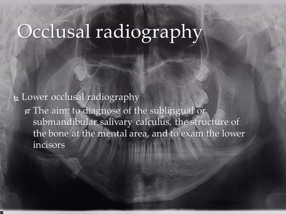 Occlusal radiography Lower occlusal radiography