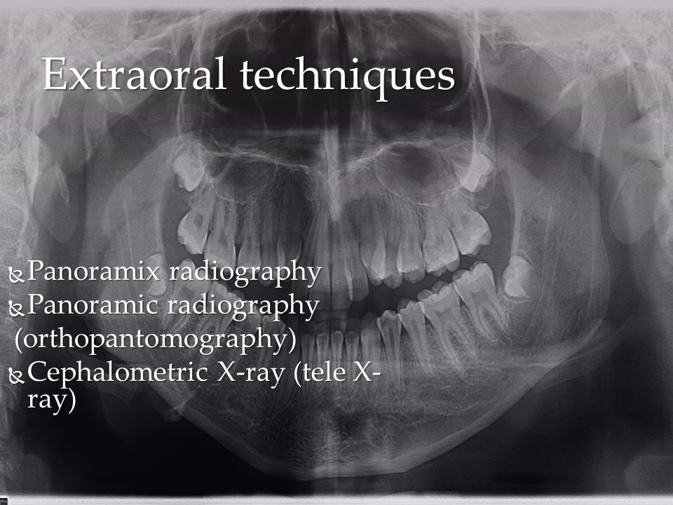 Extraoral techniques Panoramix radiography Panoramic radiography