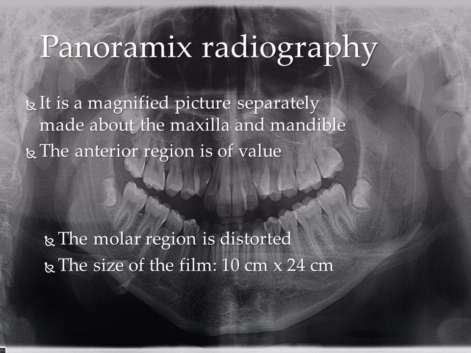 Panoramix radiography