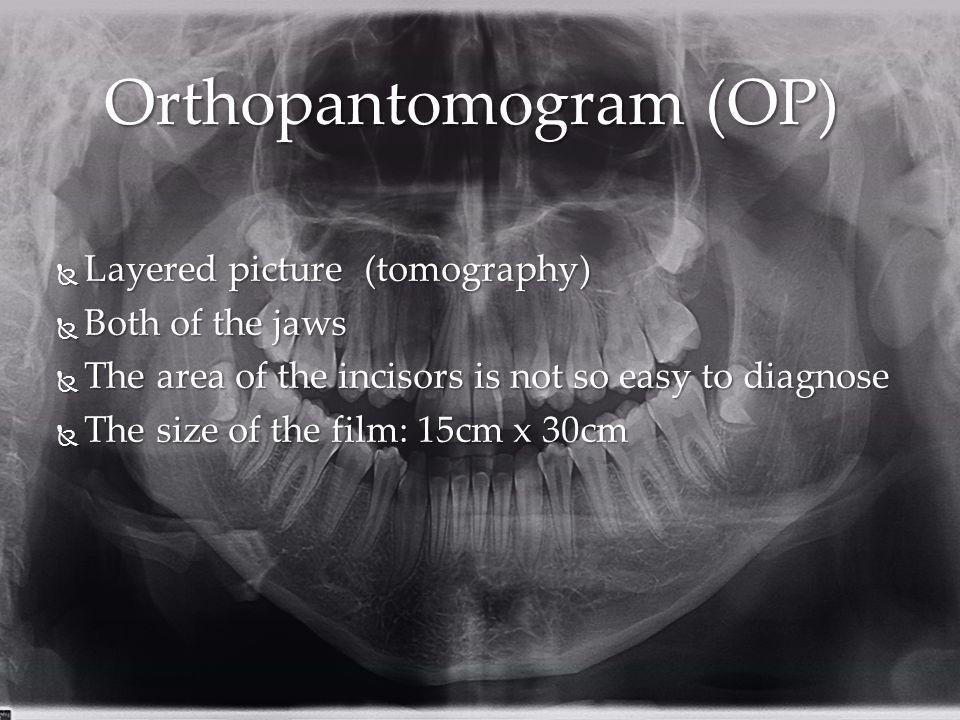 Orthopantomogram (OP)