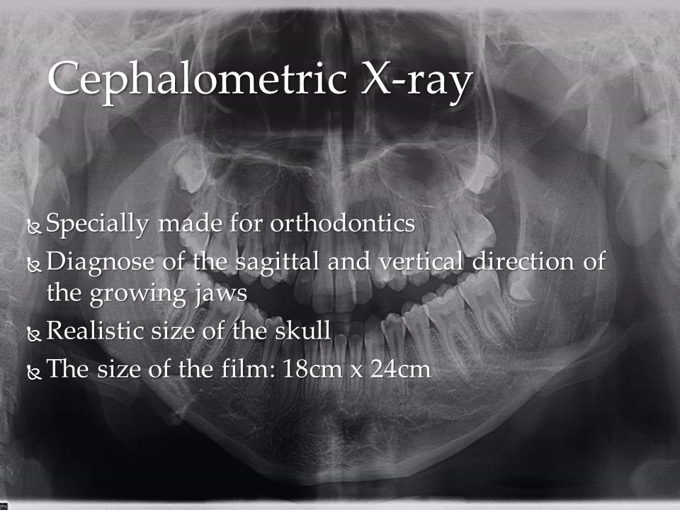 Cephalometric X-ray Specially made for orthodontics