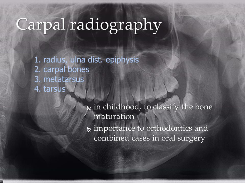 Carpal radiography radius, ulna dist. epiphysis carpal bones