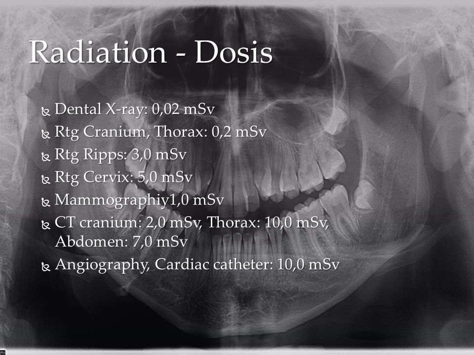 Radiation - Dosis Dental X-ray: 0,02 mSv Rtg Cranium, Thorax: 0,2 mSv