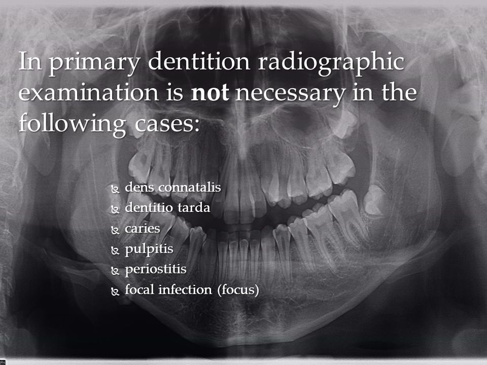 In primary dentition radiographic examination is not necessary in the following cases:
