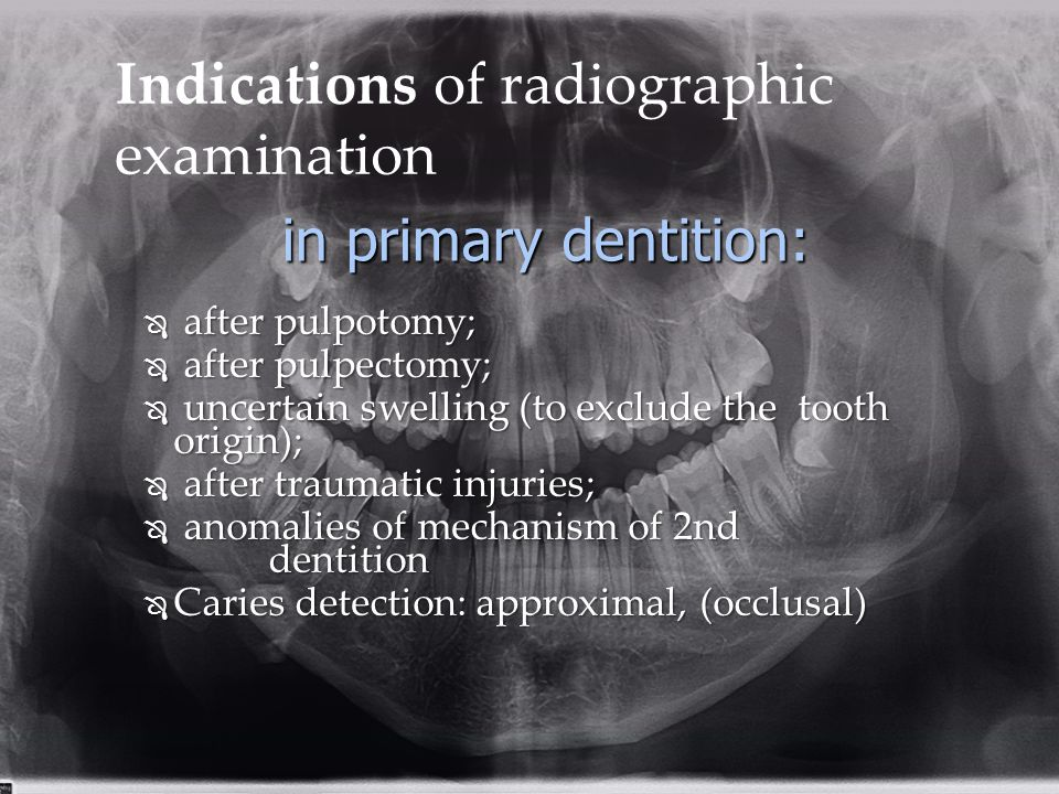 Indications of radiographic examination