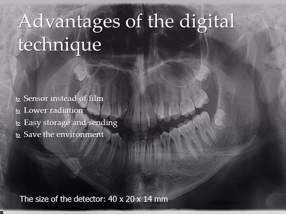 Advantages of the digital technique