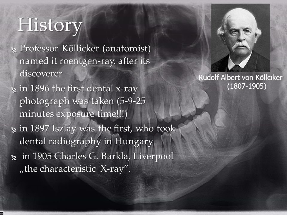 History Professor Köllicker (anatomist) named it roentgen-ray, after its discoverer.