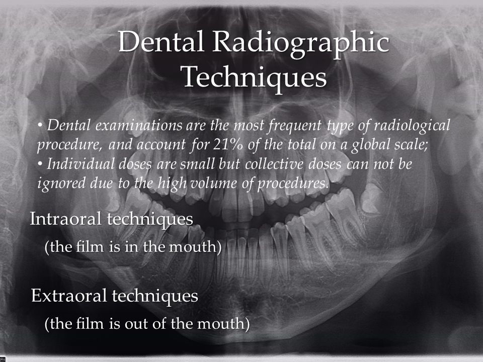 Dental Radiographic Techniques
