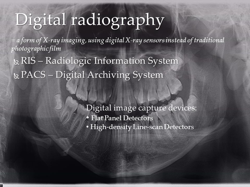 Digital radiography RIS – Radiologic Information System