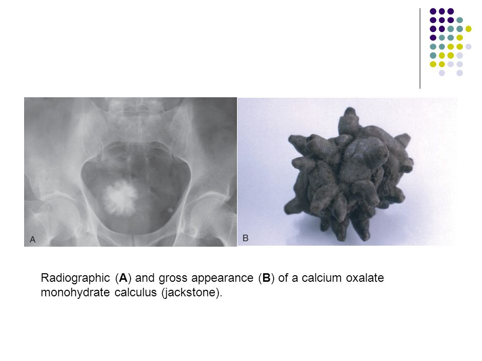 Radiographic (A) and gross appearance (B) of a calcium oxalate monohydrate calculus (jackstone).