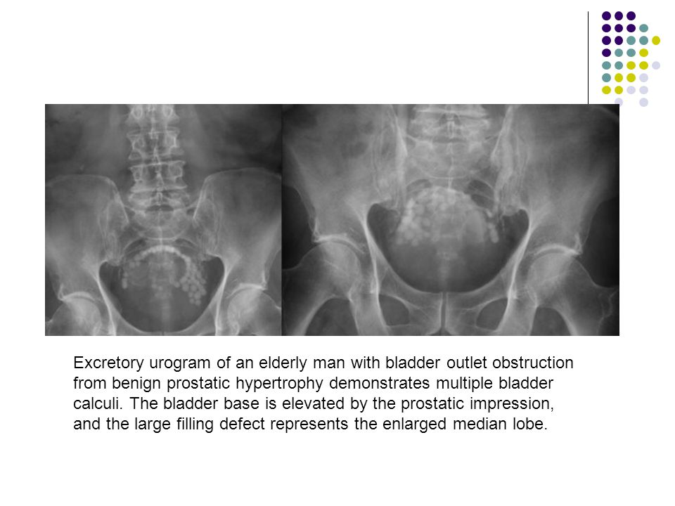 Excretory urogram of an elderly man with bladder outlet obstruction from benign prostatic hypertrophy demonstrates multiple bladder calculi.