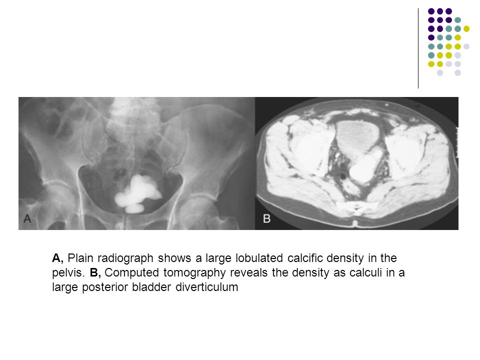 A, Plain radiograph shows a large lobulated calcific density in the pelvis.