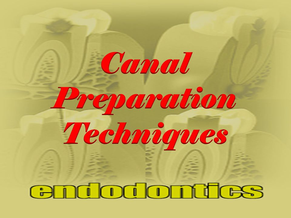 Canal Preparation Techniques
