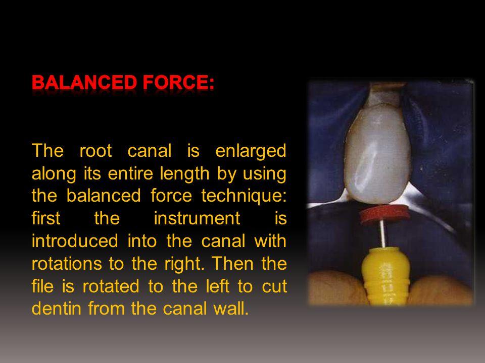 Balanced force: