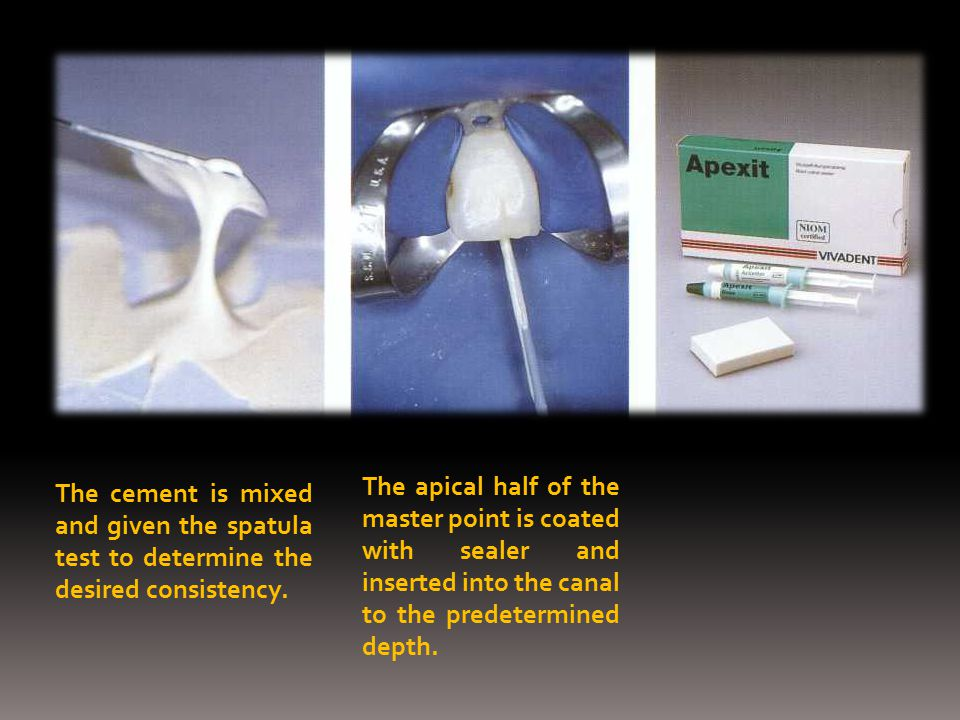 The apical half of the master point is coated with sealer and inserted into the canal to the predetermined depth.