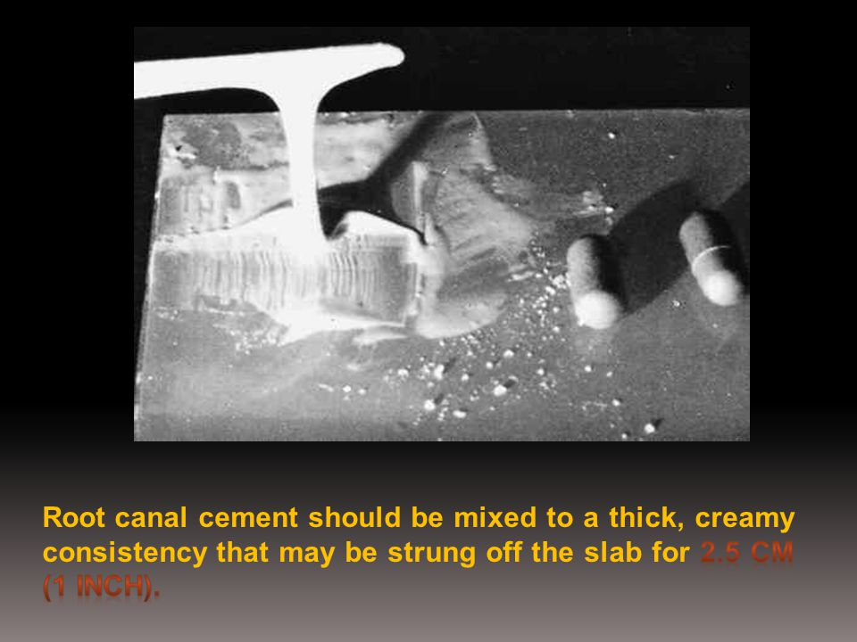 Root canal cement should be mixed to a thick, creamy consistency that may be strung off the slab for 2.5 cm (1 inch).