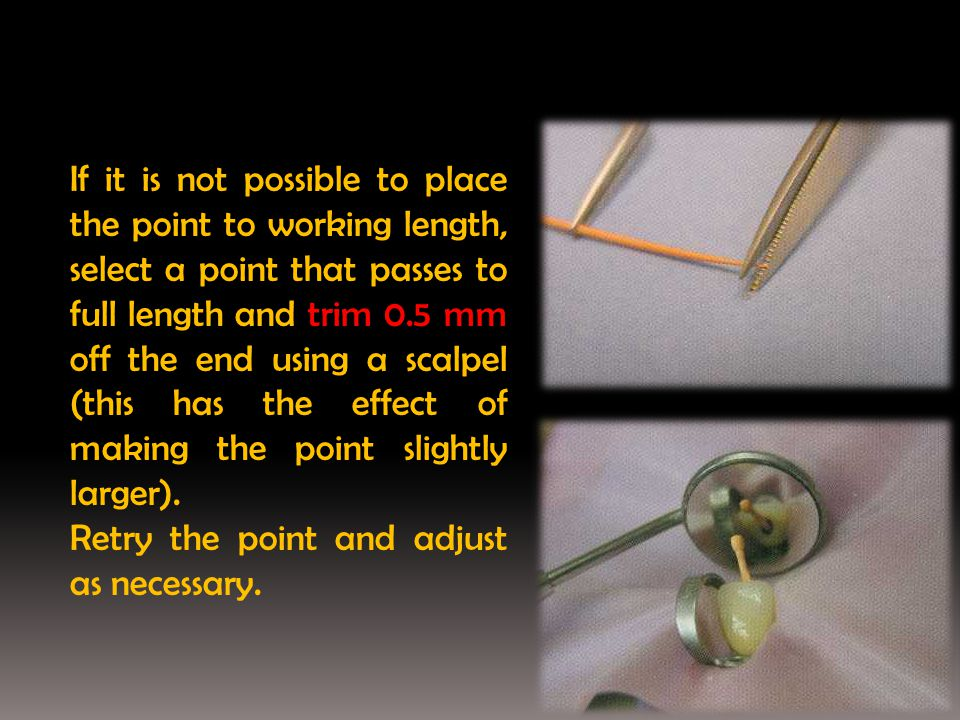 If it is not possible to place the point to working length, select a point that passes to full length and trim 0.5 mm off the end using a scalpel (this has the effect of making the point slightly larger).