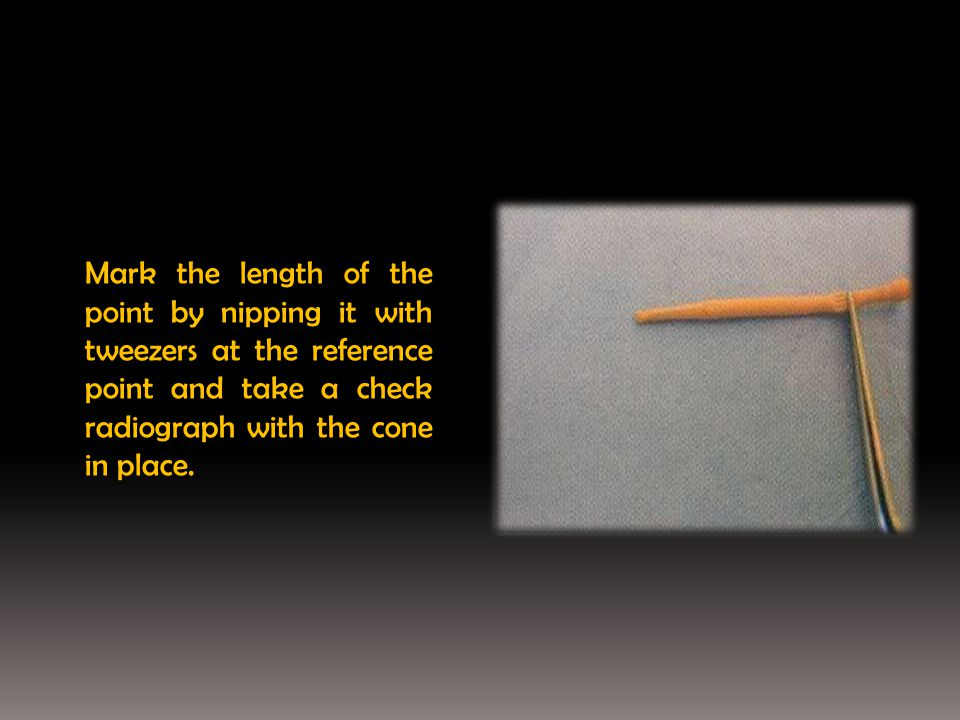Mark the length of the point by nipping it with tweezers at the reference point and take a check radiograph with the cone in place.