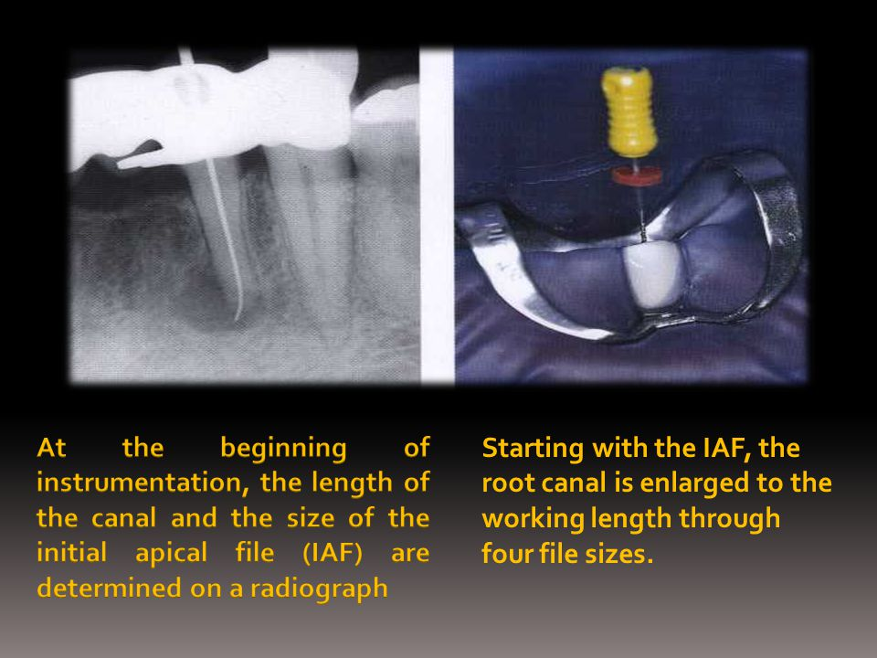 At the beginning of instrumentation, the length of the canal and the size of the initial apical file (IAF) are determined on a radiograph