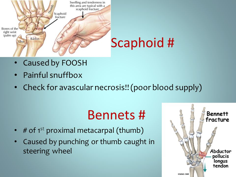 Scaphoid # Bennets # Caused by FOOSH Painful snuffbox
