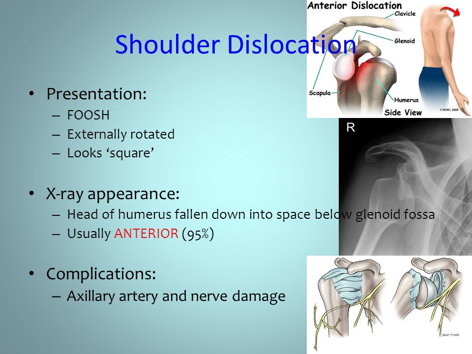 Shoulder Dislocation Presentation: X-ray appearance: Complications: