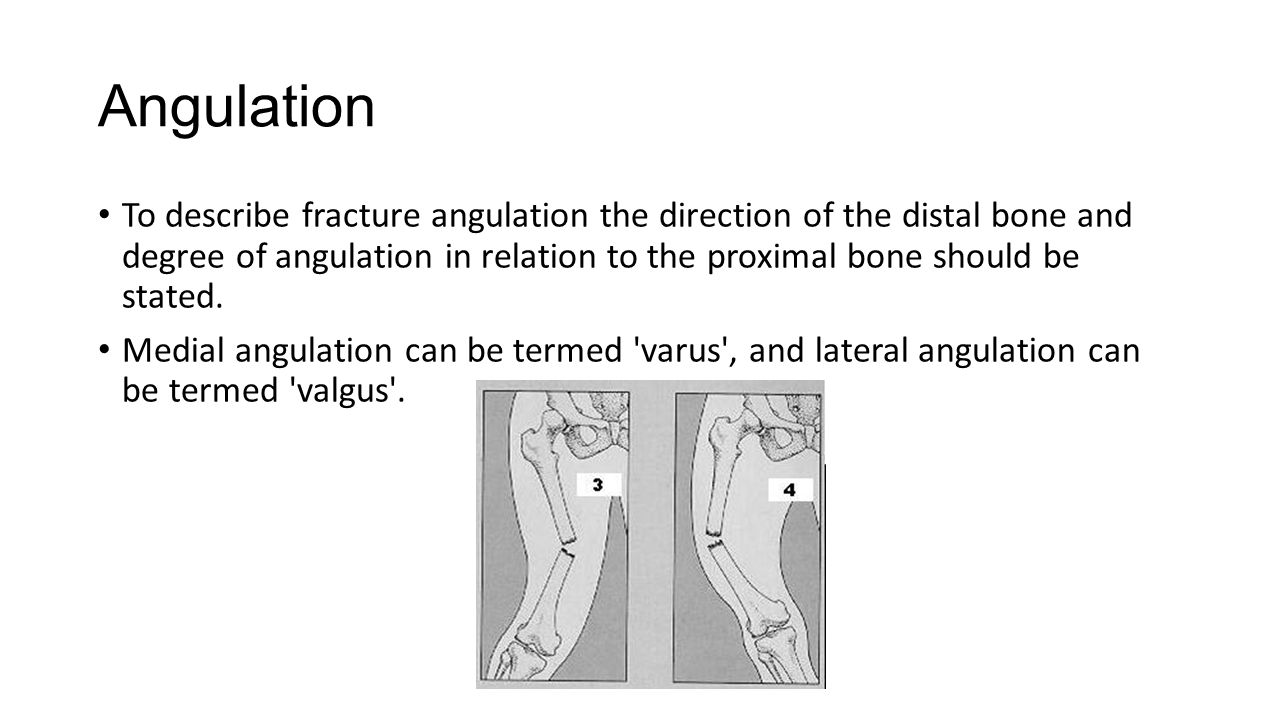 Angulation