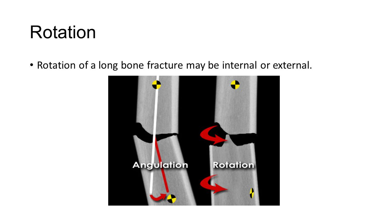 Rotation Rotation of a long bone fracture may be internal or external.