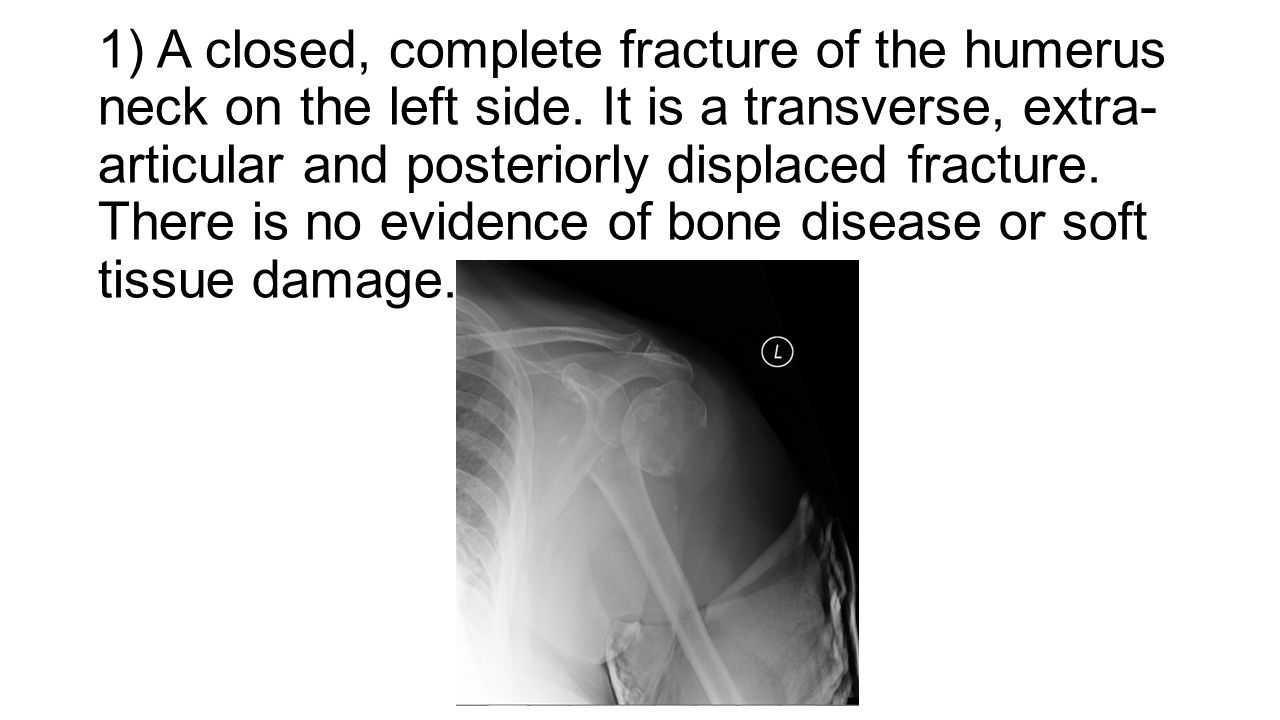 1) A closed, complete fracture of the humerus neck on the left side