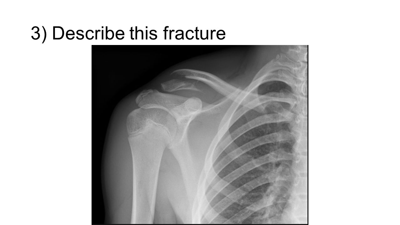 3) Describe this fracture