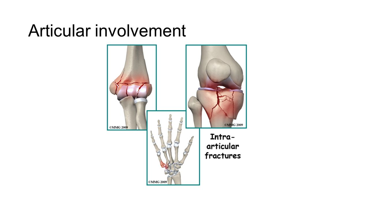 Articular involvement