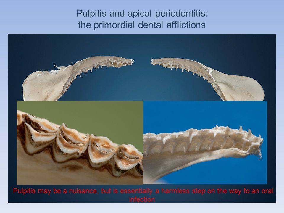 Pulpitis and apical periodontitis: the primordial dental afflictions