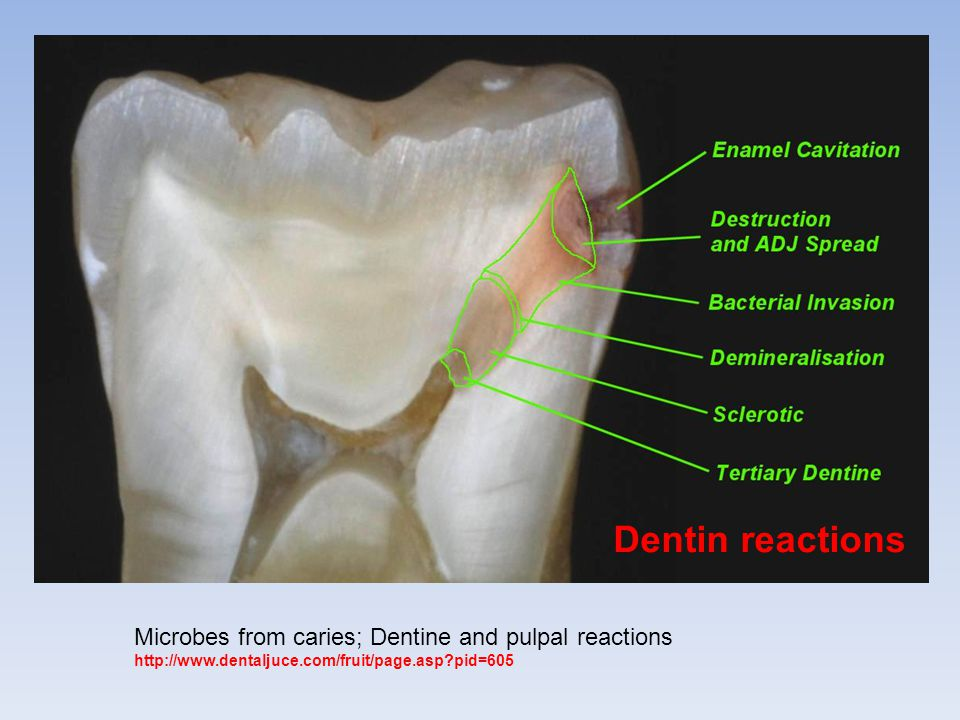 Dentin reactions Microbes from caries; Dentine and pulpal reactions